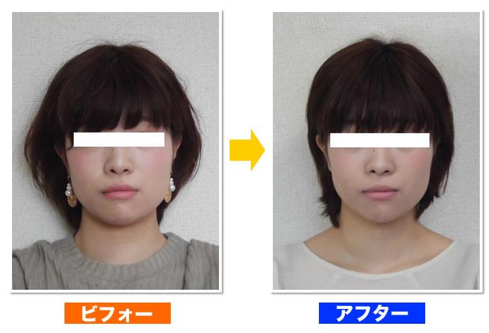府中・調布の小顔・顔の歪みが改善