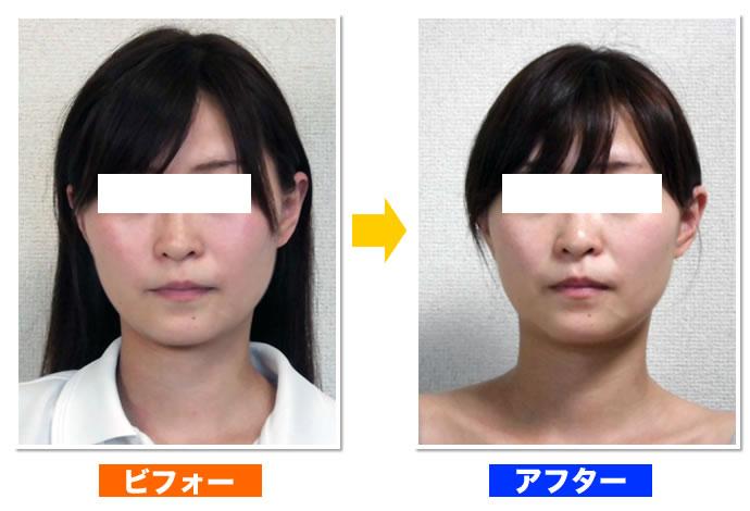 府中・調布の顔の歪み矯正